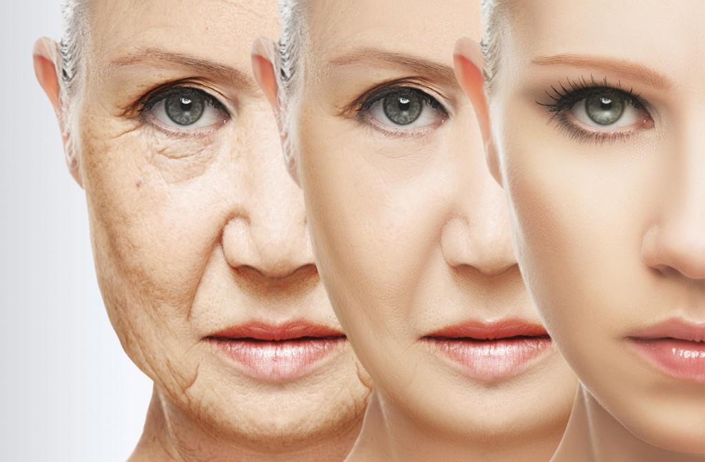 加齢性変化